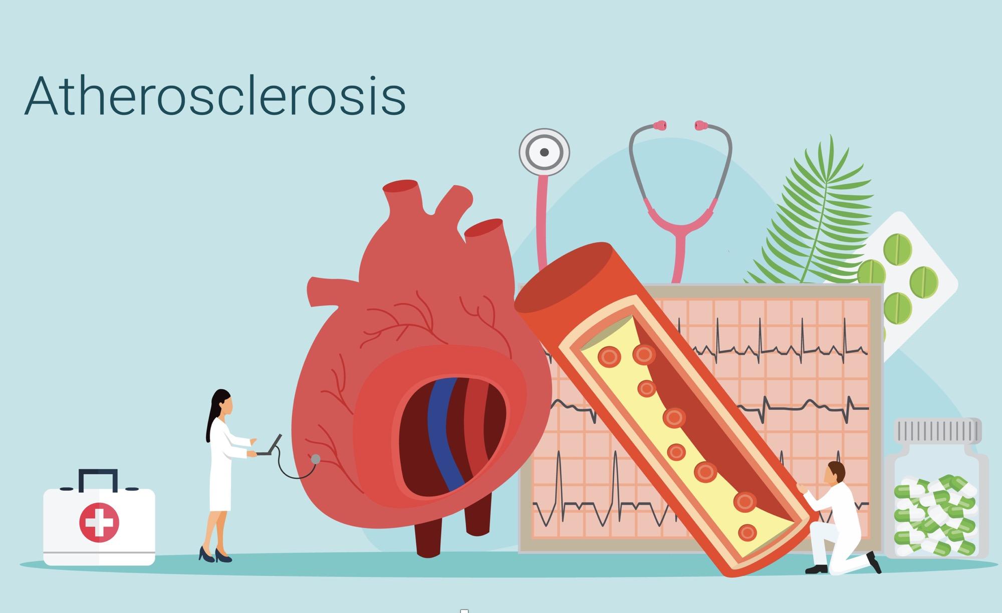 Πόσο Καλή είναι η Χοληστερίνη Σας;