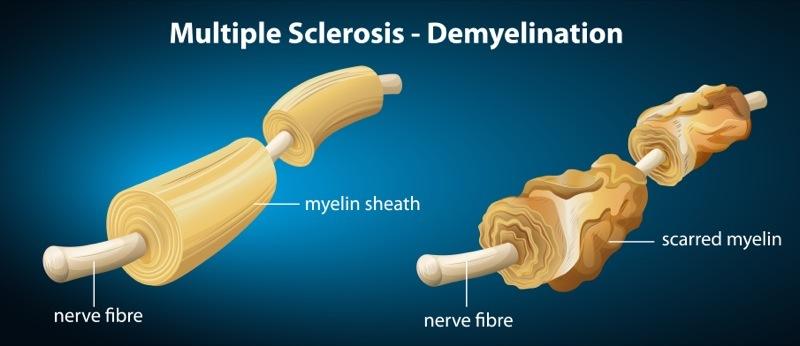 Τα βακτήρια του εντέρου επηρεάζουν την παραγωγή μυελίνης στα νευρικά κύτταρα
