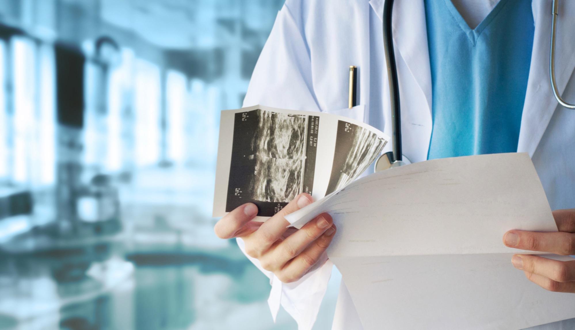 Ο υγιεινός τρόπος ζωής μπορεί να μειώσει έως και 50% τους θανάτους από καρκίνο