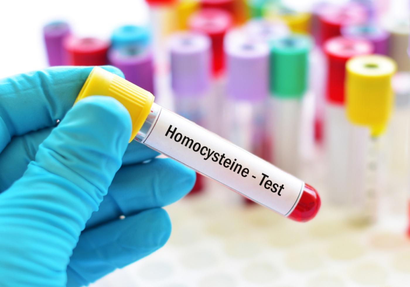 Είναι η Ομοκυστεΐνη η νέα Χοληστερίνη;